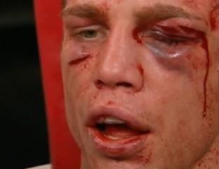 顔面が崩壊していくボクサー